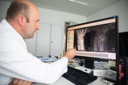 Der Arzt zeigt Röntgenbilder von gebrochenen Knochen